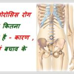 ऑस्टियोपोरोसिस / Osteoporosis